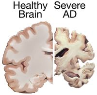 healthy and Alzheimer's brain