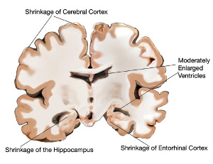 Brain of mild Alzheimers : image from National Institute on Aging/National Institutes of Health