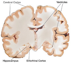 cerebrum and dementia care essay Dementia essay submitted by: below is an essay on dementia from anti essays cerebrum lobe and the hippocampus.